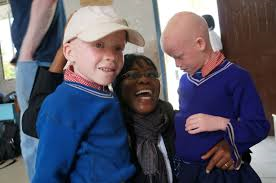 Vicky Ntetema and children with albinism copy